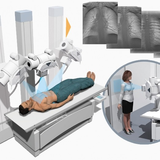 3D Digital X-Ray System (Tomosynthesis)